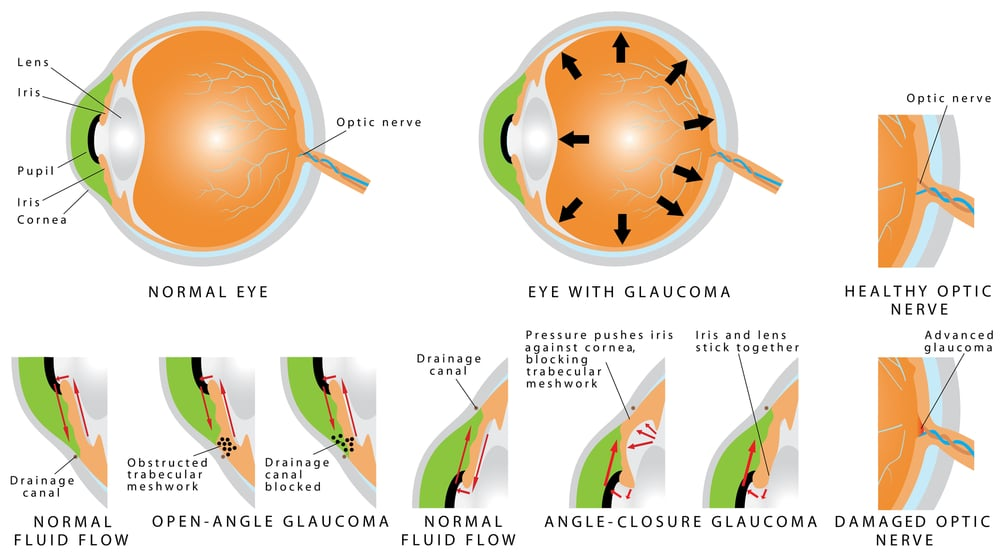 stop glaucoma progression