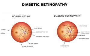 Diabetic retinopathy bergen county