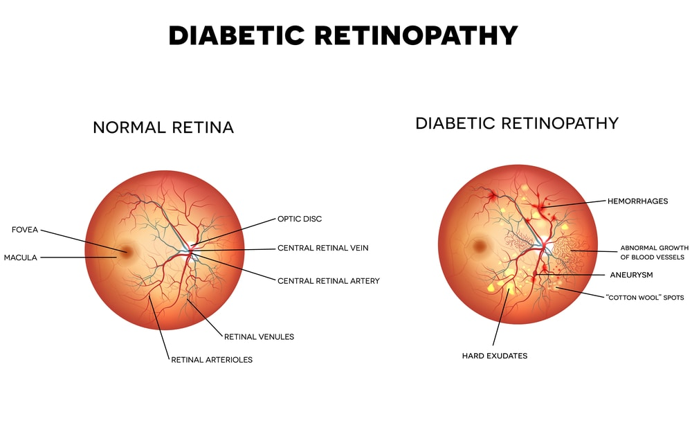 Diabetic retinopathy bergen county Bergenfield