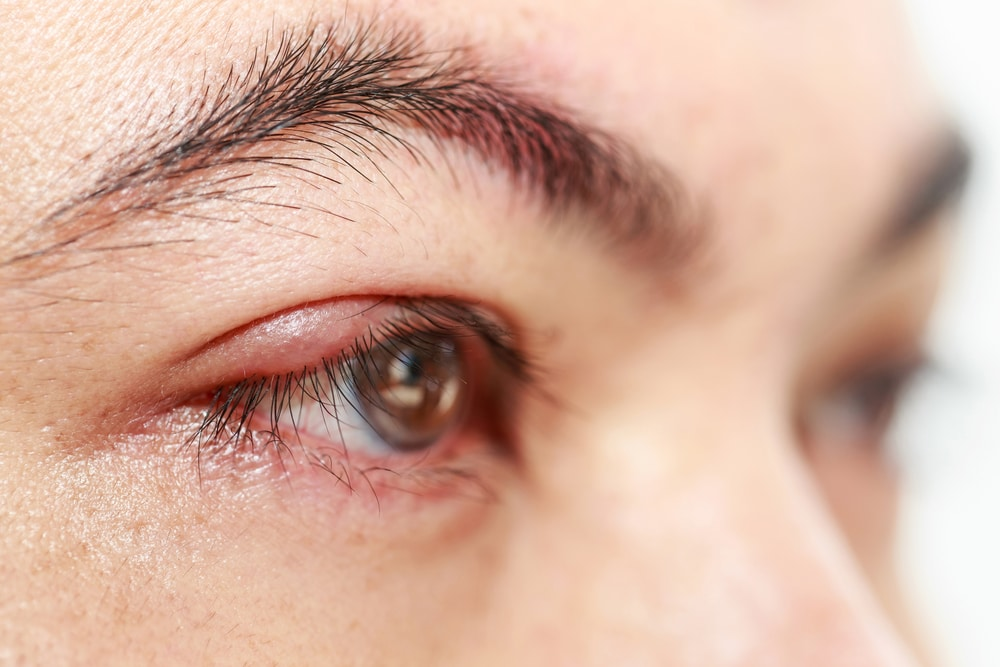 Eye stye treatments eye care eye center bergen county new jersey