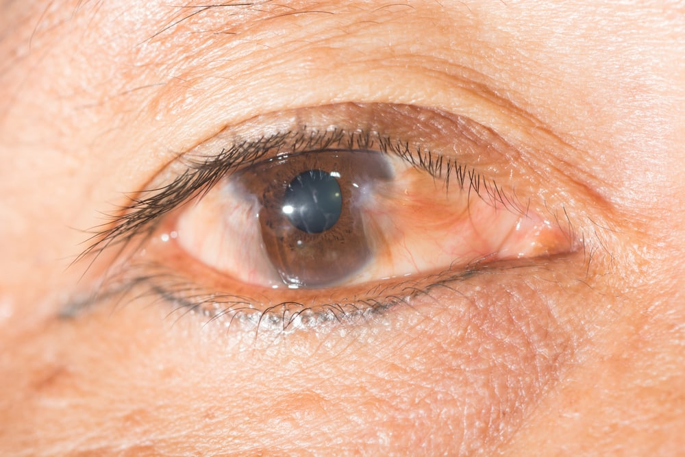 Pinguecula and Pterygium Eye care eye center glaucoma cataract vision exam retina Bergen county New Jersey