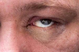 Blepharitis symptoms causes treatment new jersey