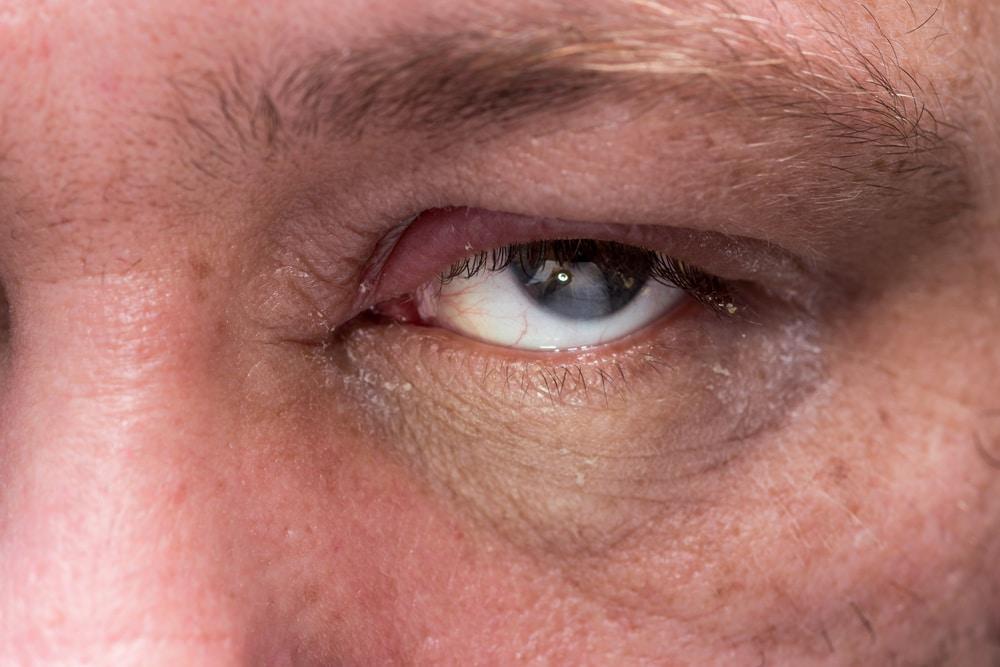 Blepharitis Treatment NJ