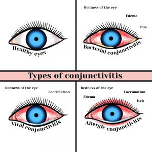 Conjunctivitis types causes treatment new jersey