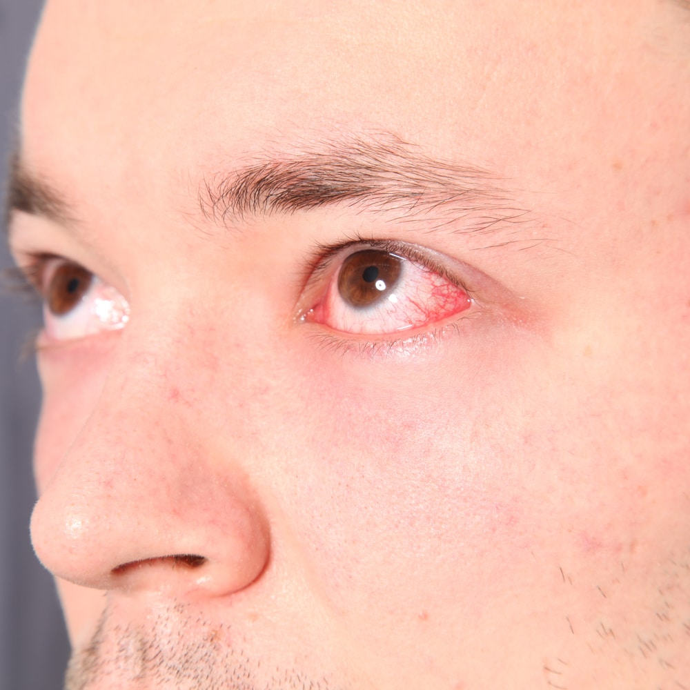 Eye allergies causes & treatments in Bergenfield new jersey
