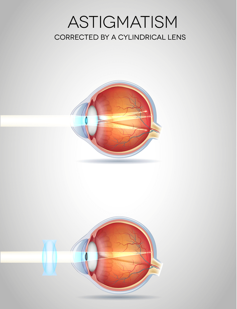 Astigmatism types, causes & treatment eye care eye center bergenfield new jersey nj