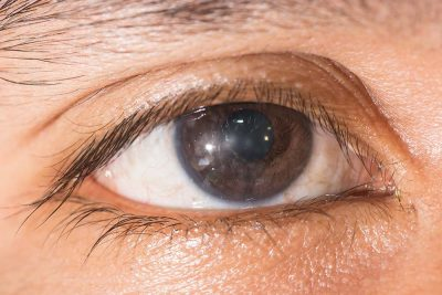 Keratitis Causes,Signs & Treatment Eye care eye center bergenfield nj