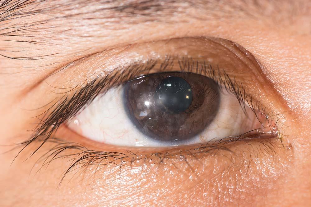 Keratitis Causes,Signs & Treatment Eye care eye center bergenfield nj
