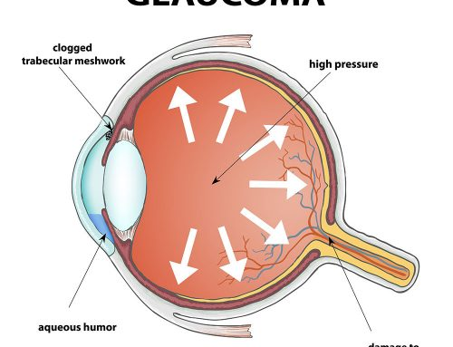 Glaucoma Prevention: Simple Steps to Take Control
