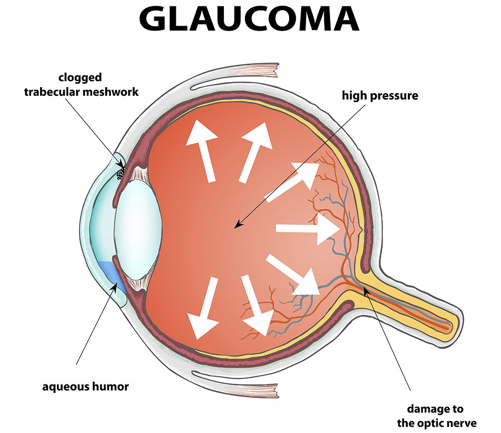 glaucoma prevention new jersey eye center