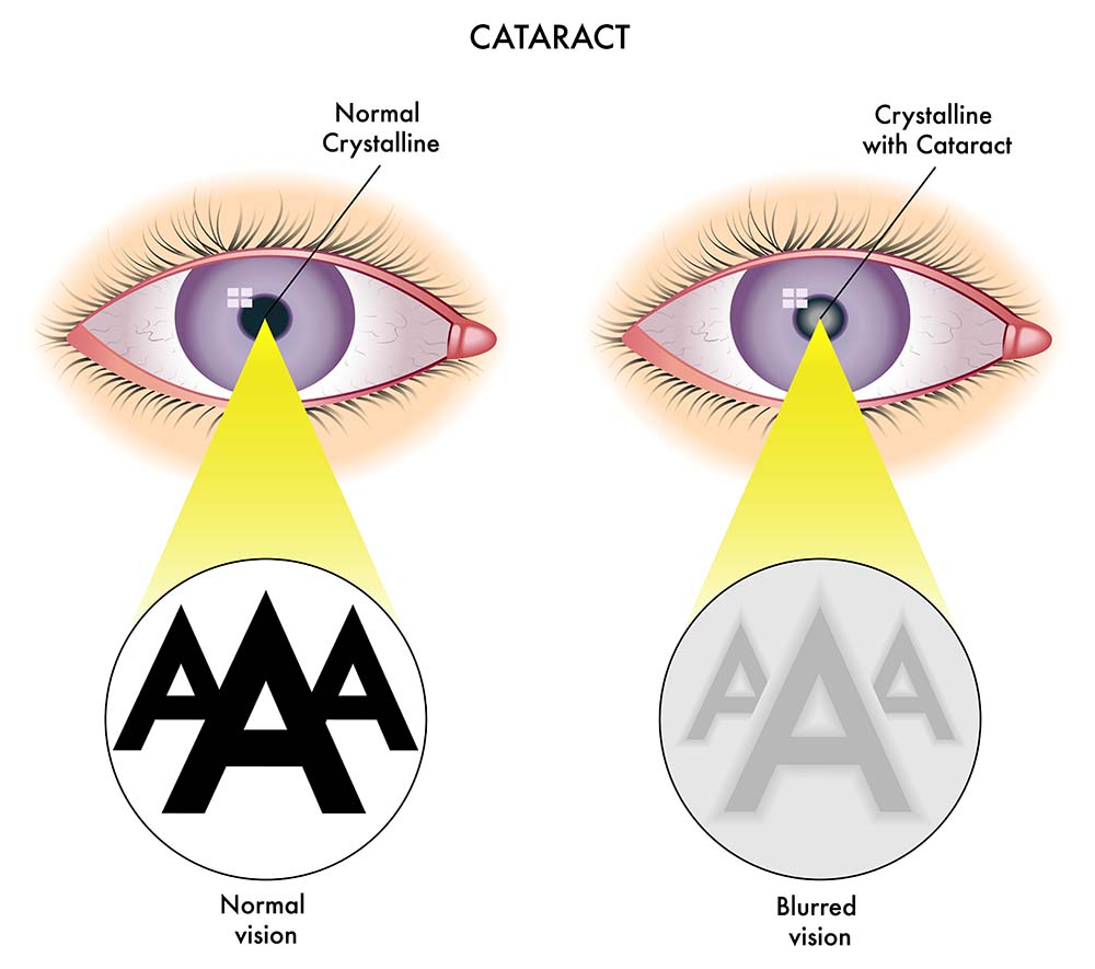 Laser Cataract Surgery New Jersey