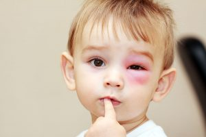 Eye injuries treatment nj eye center bergenfield