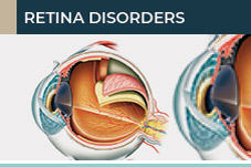 Retina disorders treatment and New Jersey Eye Center