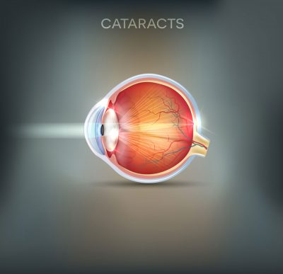 Cataract abstracts on gray background
