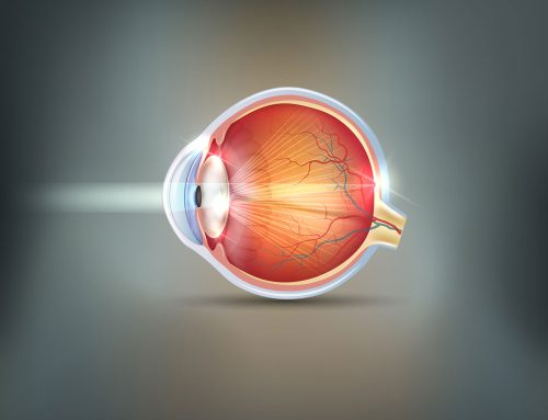 When To Have Cataract Surgery